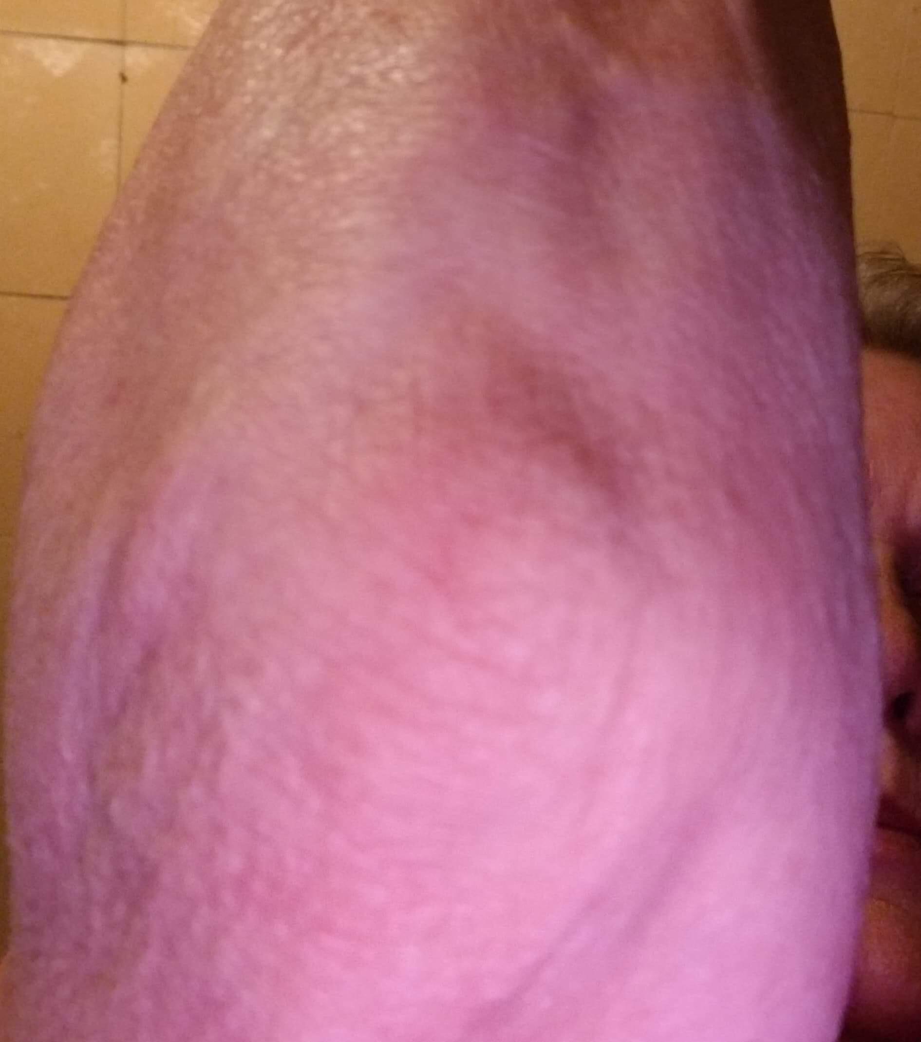 elbow help 3.jpeg