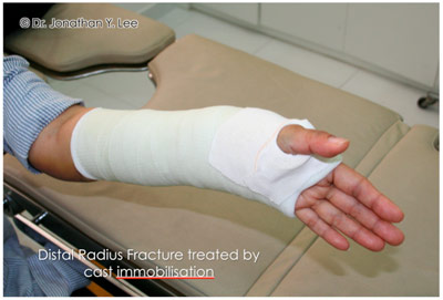 Figure 4: Distal Radius Fracture Treated by Cast Immobilisation