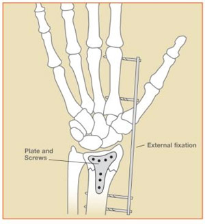Figure 5: Distal Radius Fractures – External and Internal Fixation