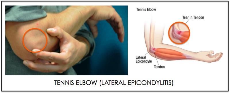 Tennis-Elbow_annotated.jpg