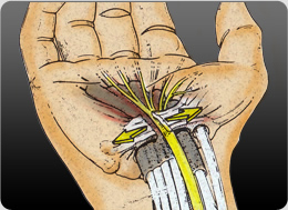The goal of Carpal Tunnel Release surgery is to divide the Transverse Carpal Ligament and relieve the pressure on the Median Nerve.