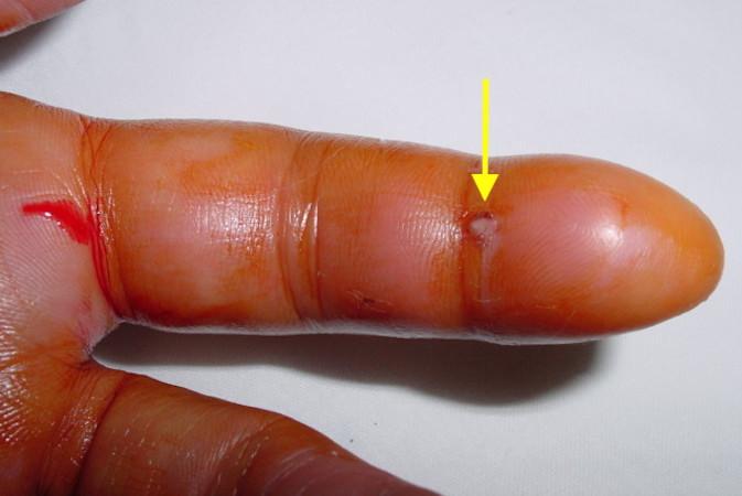 Hand Infections — Dr  Jonathan Lee Yi-Liang