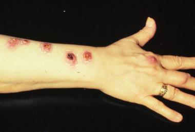 ATYPICAL MYCOBACTERIAL INFECTIONS .jpg