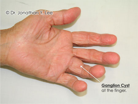 Figure 2: The 2nd most common hand tumour is a Giant Cell Tumour of Tendon Sheath. Unlike the fluid-filled ganglion cyst, these tumours are solid masses. They can occur anywhere there is a nearby tendon sheath. They are benign, slow-growing masses that spread through the soft tissue underneath the skin (Figure 3 and Figure 4). Some believe that they may be caused by trauma that stimulates the tendon sheath to start growing abnormally. They are not cancerous.