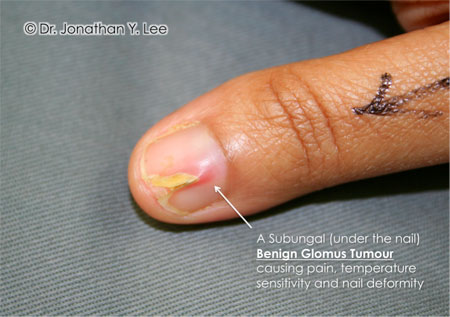 Figure 6: Glomus Tumour underneath the fingernail.