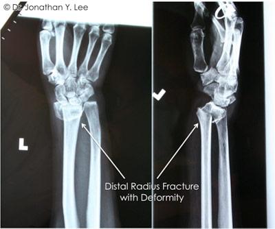 Figure 3 showing distal radius fracture with deformity
