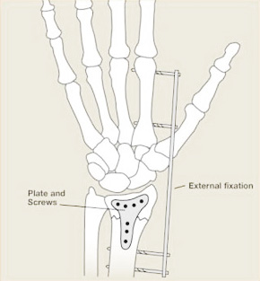 Figure 5 Surgery to stabilise the fracture with internal and external fixation