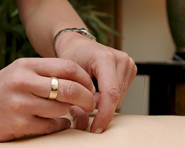 Acupuncture - Acupuncture is a safe, effective and drug-free therapy that can eliminate pain and restore balance and harmony, as well as the body's ability to heal itself—ultimately leading to optimal health and well-being.