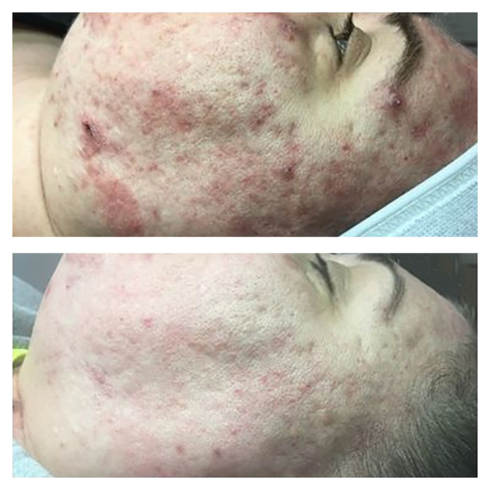 After 8 Weeks of treatment
