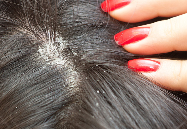 Dandruff - Dandruff is shedding or flaking of the skin on the scalp.  The most common causes of dandruff are eczema and seborrheic dermatitis.  The skin may be itchy and flakes may accumulate on the scalp, shedding onto the clothing.  Dandruff is not contagious however it is a chronic problem.  That means that while it can be controlled with shampoos and lotions, it cannot be cured and the symptoms may recur.