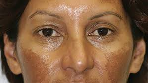 Melasma - Melasma is a common disorder where there is increased pigmentation of the skin, usually of the sun exposed areas of the face. It is most common in women with darker skin tones and women who are on birth control pills, taking hormone replacement, or pregnant. The exact causes are unknown, but there are genetic factors at work and melasma is made worse by exposure to sunlight. Melasma is difficult to treat and returns easily, especially after exposure to sunlight. It is very important for people with melasma to use sunscreen and avoid sun exposure as much as possible. Prescription creams are helpful in treating melasma, as are chemical peels. Laser treatments also help improve melasma, however certain types of lasers may make melasma worse. It is important to seek treatment from a board-certified dermatologist who has experience with lasers to be sure that you are being treated the right way.