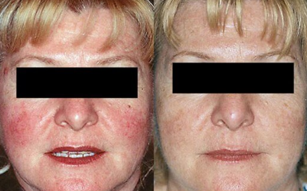 Facial redness, broken blood vessels, discoloration - Many people are affected with vascular skin conditions or pigmentation that they don't like. These conditions can have a serious effect on the individual's quality of life or well-being. We use a laser to precisely target the red and/or brown discolorations to improve the appearance of the skin.The laser treats the following conditions:  · Rosacea    · Facial veins     · Leg veins     · Angiomas     · Freckles     · Age spots     · Sun spots     · Sun damage     · Red birthmarks     ·  Venous lakes     · Scars     · Skin revitalizationWhat is the treatment like?Your skin will be cleansed to remove all traces of sunscreen and makeup. Eye protection will be placed over your eyes. Depending on your treatment you may have a cool gel applied to your skin. The laser treatment is a quick pulse of light that may feel like a rubber band lightly snapping on the skin or may just feel like a warm sensation. Most patients are very comfortable.Are there any side effects? What about downtime?Redness and/or swelling can be expected following treatment and will resolve within a few days. Treated brown spots will darken and slough off within three to six days. For full face treatments, swelling will peak 24 to 48 hours post treatment and usually resolves within a few days. Typically, you can wear make-up and return to normal activities immediately. In some cases, you may receive a topical steroid to reduce swelling as needed.What are the benefits of laser treatment?For most people, the laser provides quick treatments with best results within just a few days. Most procedures only take 5 to 10 minutes, but some may take up to 45 minutes.How many treatments will I need?Most treatments require only one to two treatment sessions. The number of treatments will vary based on your condition. You may need additional treatments over time to maintain your results.