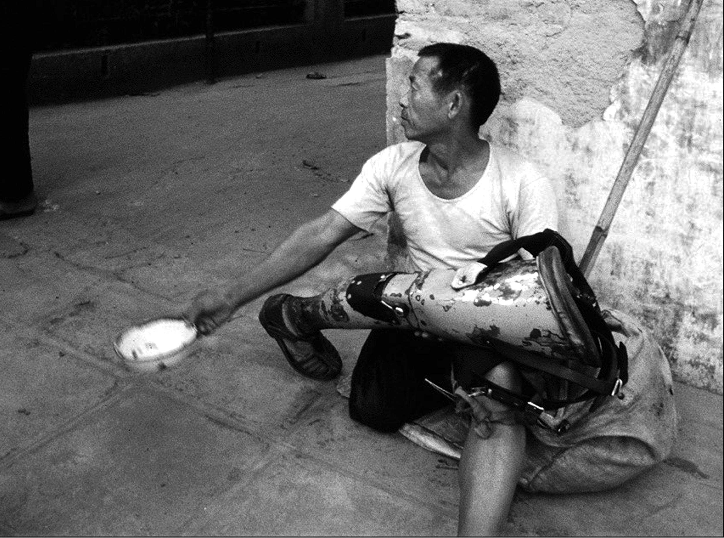 Prosthetic Beggar