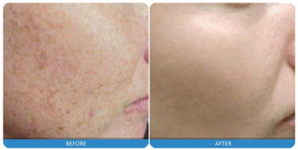 1-laser-skin-rejuvenation.jpg