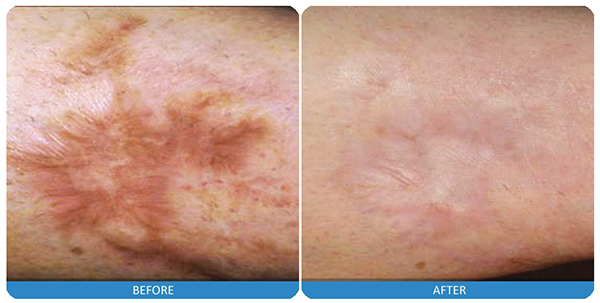 17-Laser-scar-treatment.jpg