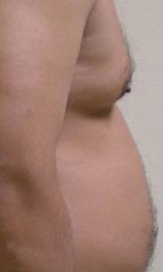 Before body sculpting