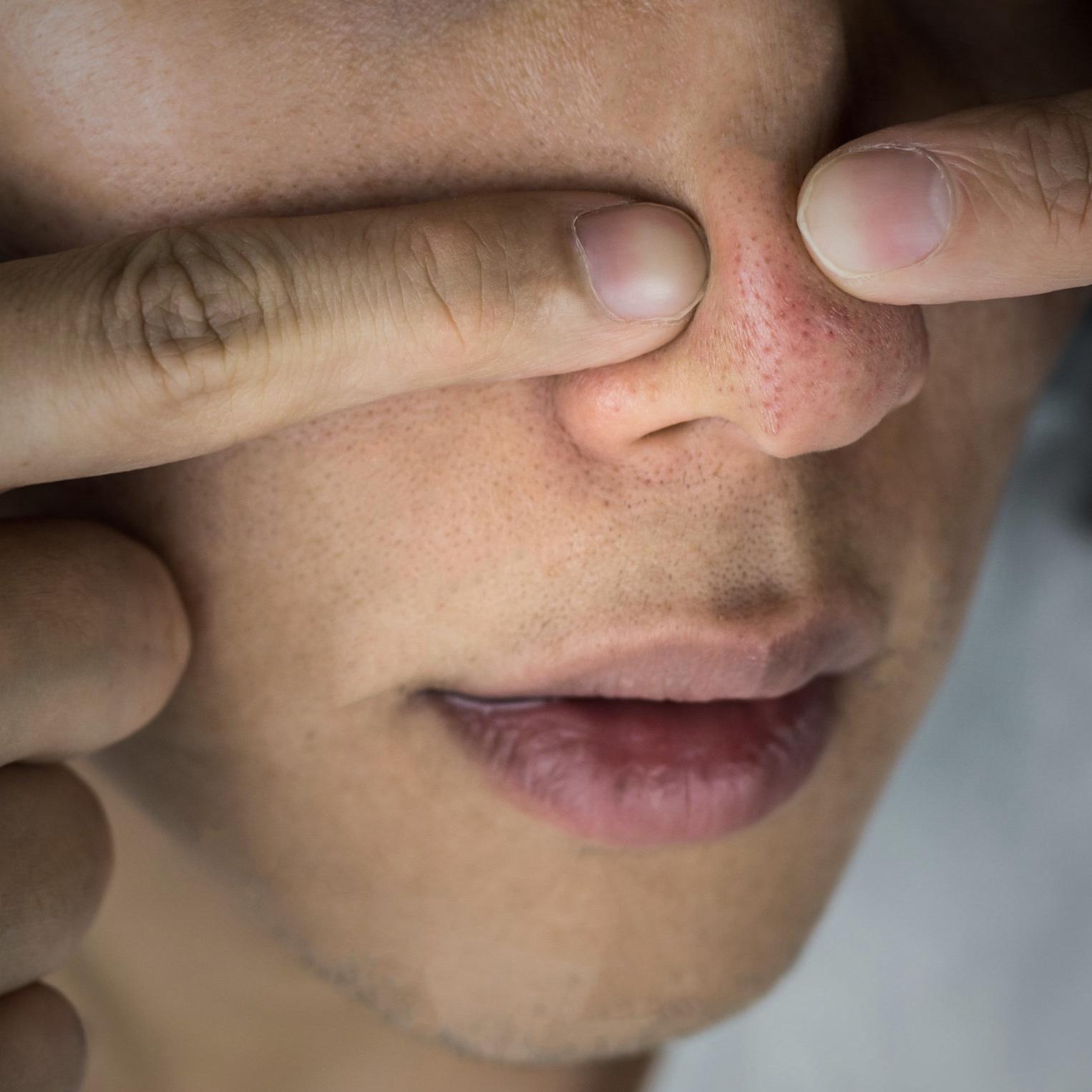 squeezing+nose+pores.jpg