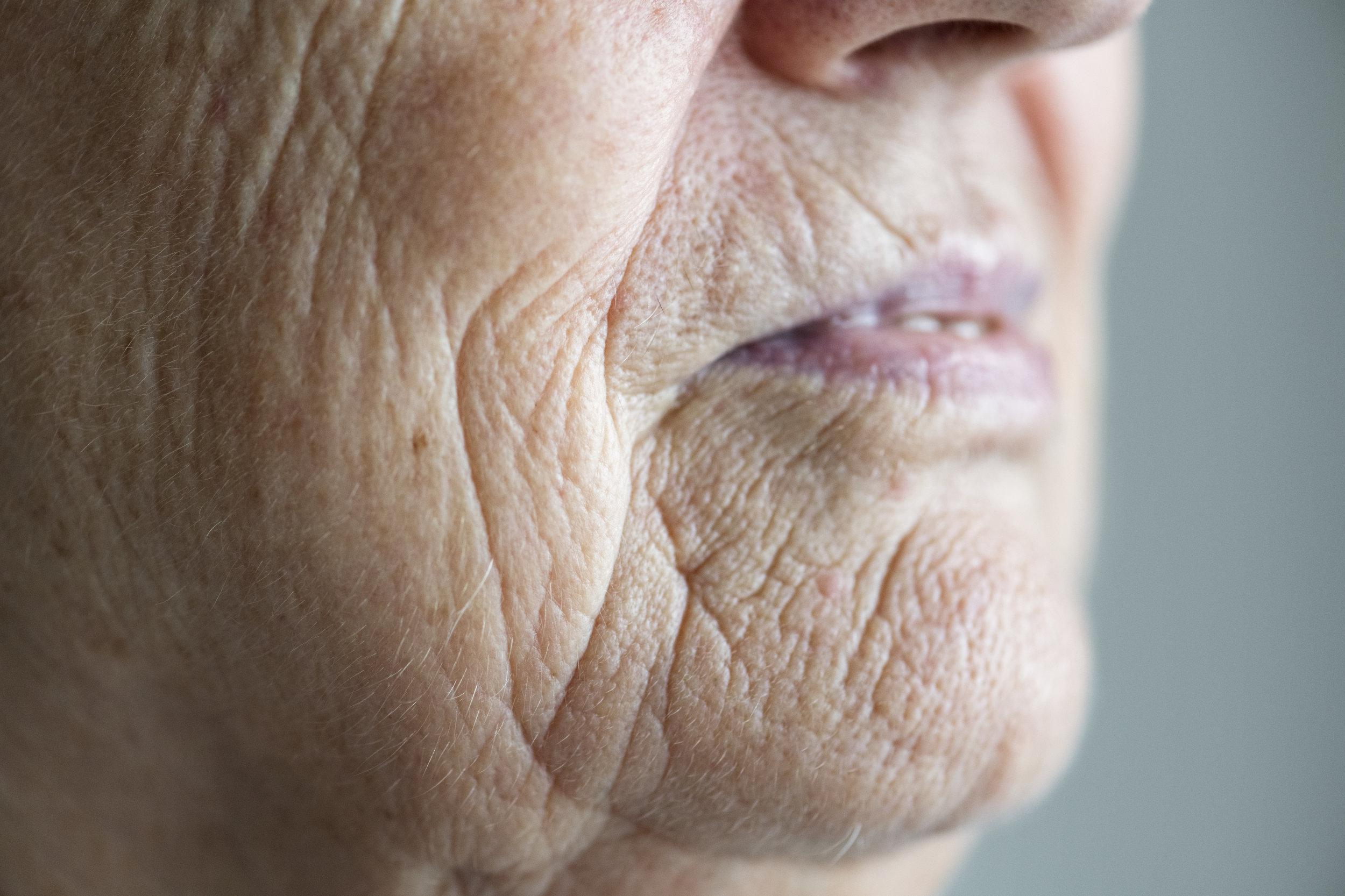 skin laxity and wrinkles.jpeg