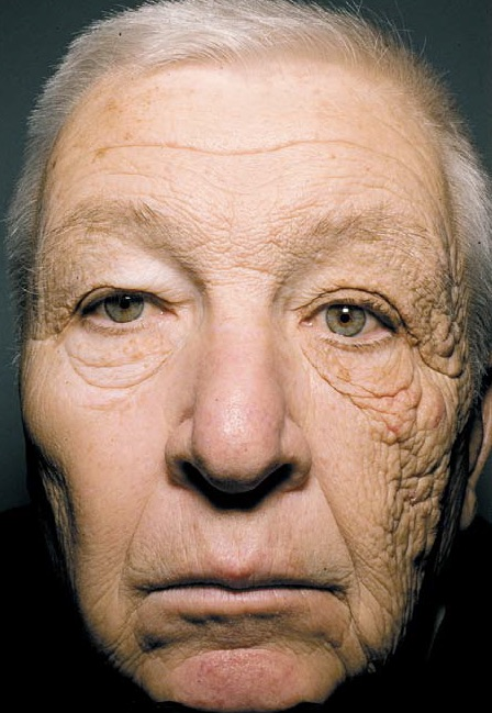 Figure 2 | 69-year old man with photo damaged skin on (L) side of face following chronic UV exposure during his 28-year history of driving a delivery truck | Gordon J & Brieva J, 2012.  New Engl J Med , 366(16):e25-26.
