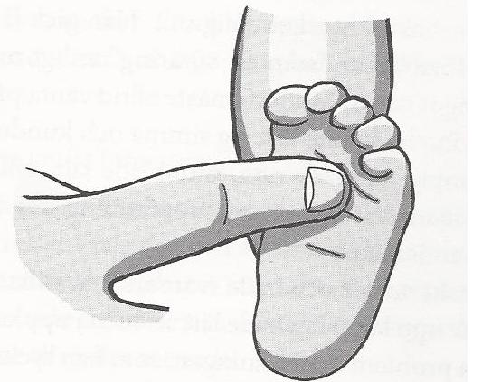 The Plantar reflex position. When pressure is applied to the top of the sole of the foot, the toes will curl.