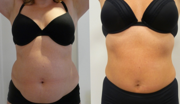 Blast the fat cells with the 3dLipo Fat Freeze