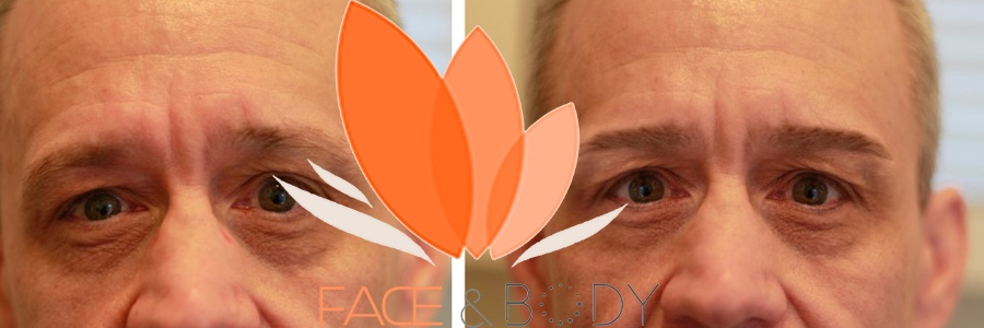 FACE AND BODY MAN MICROBLADING 5.png