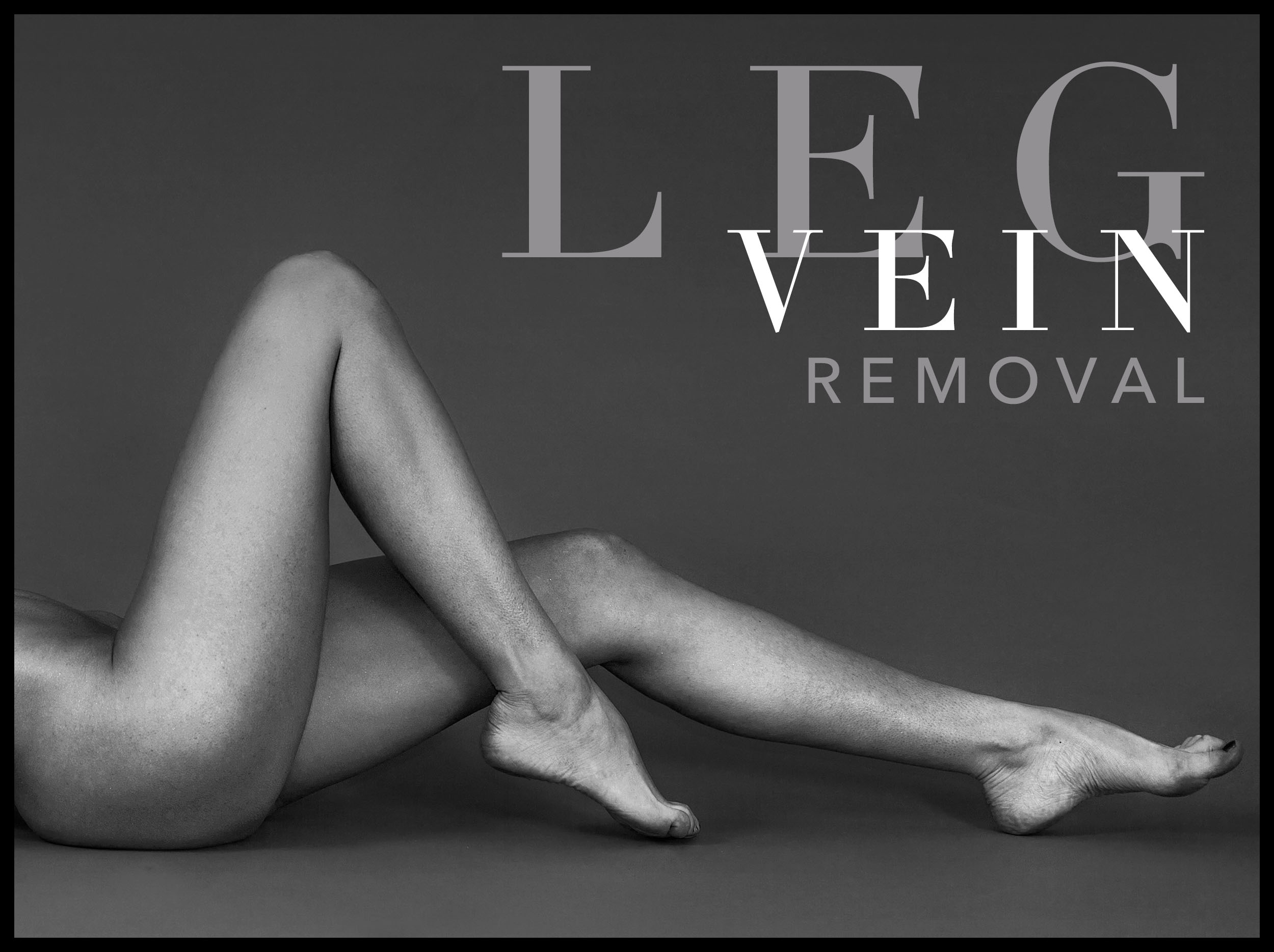 leg vein graphic.jpg