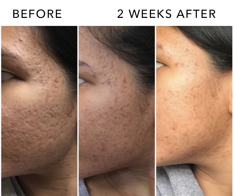 PRP FACIAL BEFORE AND AFTER.jpg