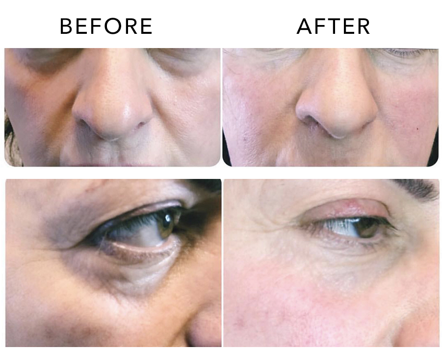 Under Eye Filler, Dr. Khadavi