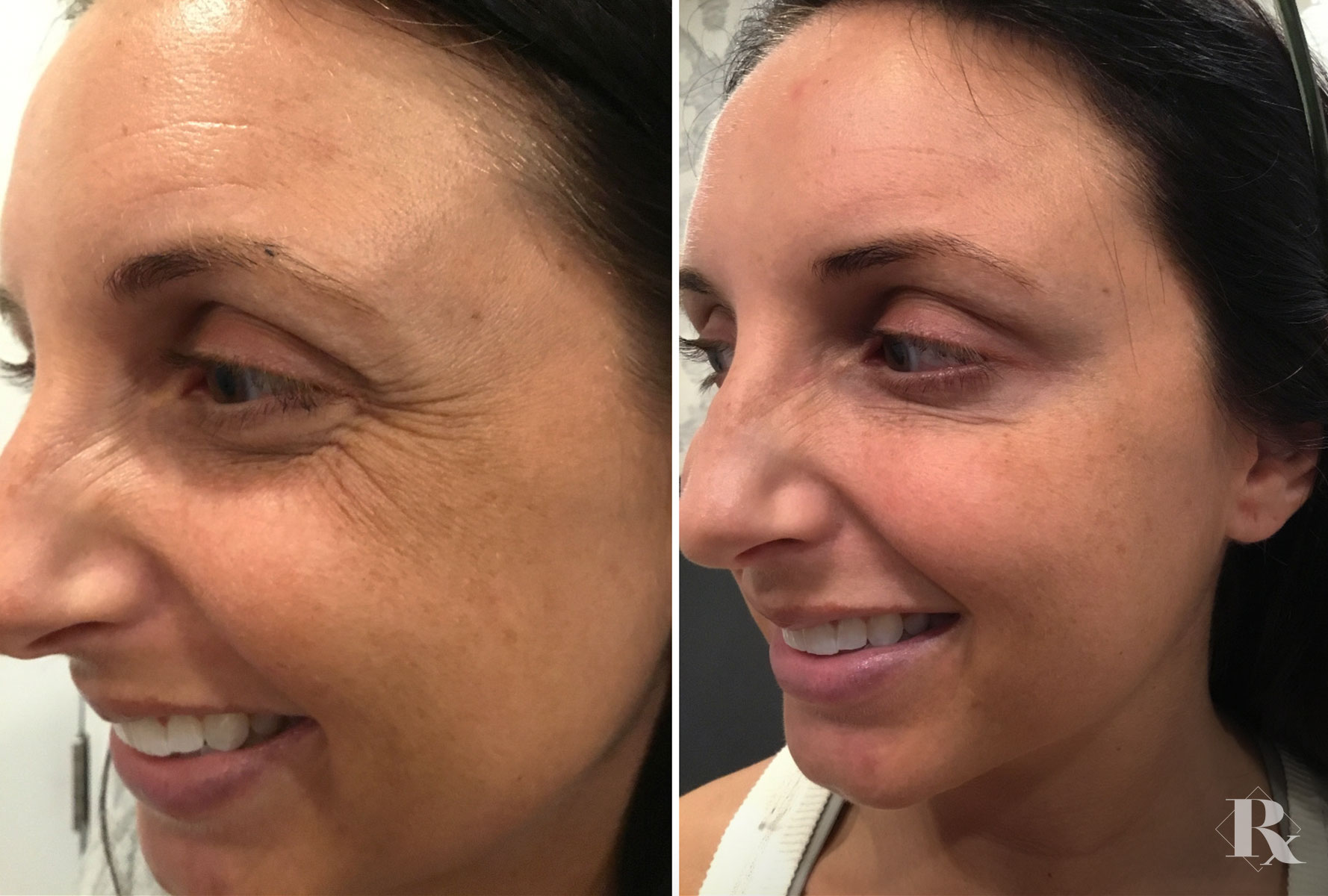 Dysport for Wrinkle Reduction
