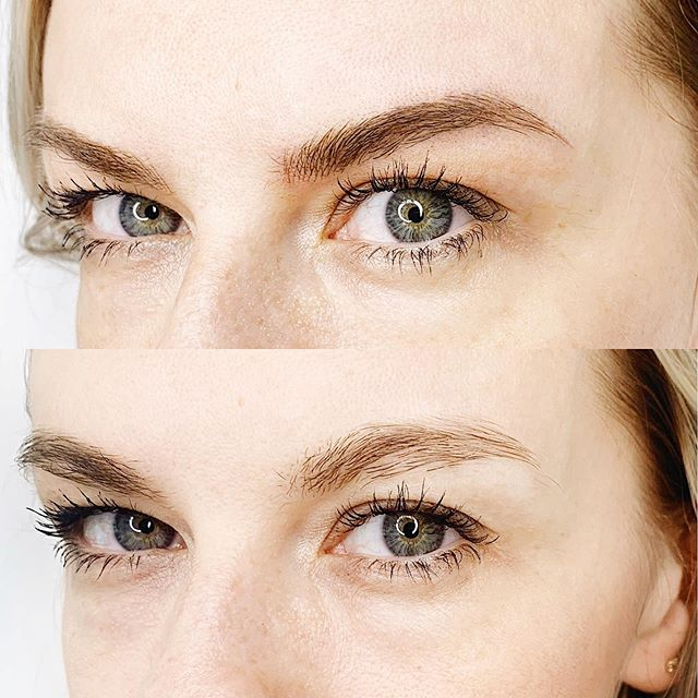 My beautiful client tried to grow her eyebrows out after years of plucking. Aren't we all guilty of that? 🤦🏻♀️ She gave them a while, but they refused to cooperate. Luckily with the help of microblading we were able to redefine her shape and fill in the bald spots. Her brows already look fuller, can't wait for her touch up to add some density. 🔥🔥🔥