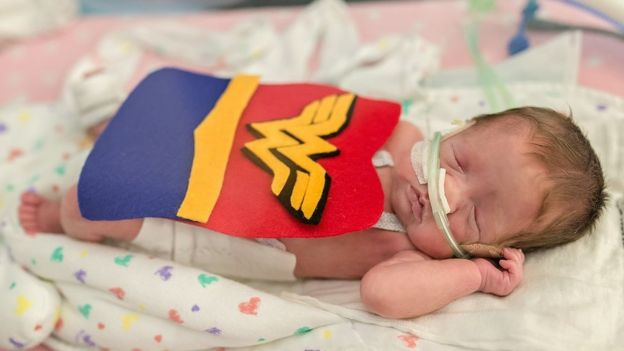 One baby was dressed as Wonder Woman. Image copyright: FACES YOU LOVE PHOTOGRAPHY AND MARCH OF DIMES.