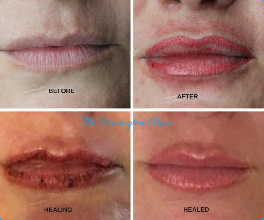 lip journey.png
