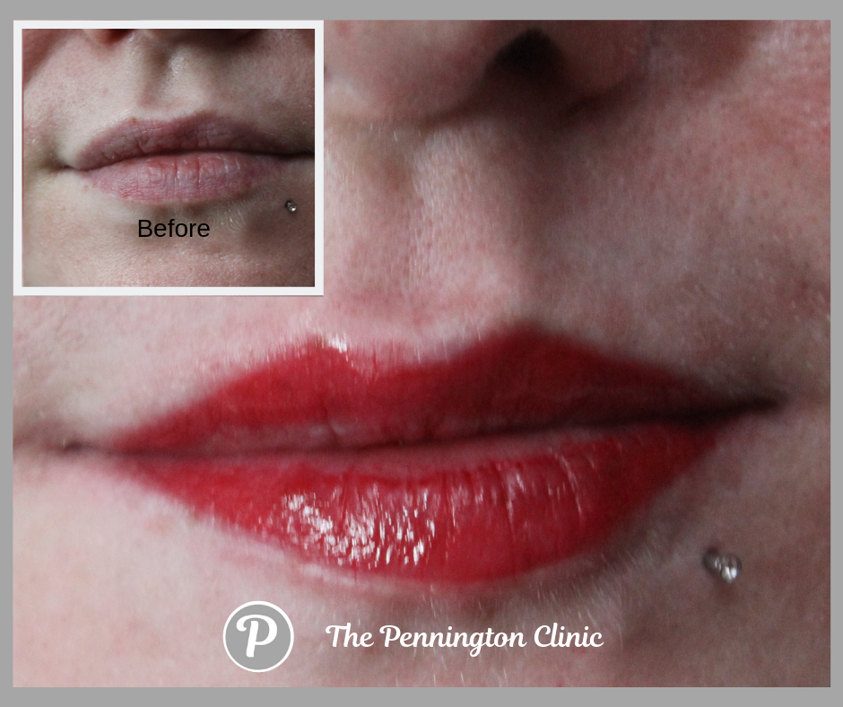 The Pennington Clinic (6).png