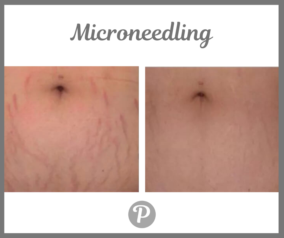 Microneedling (1).png