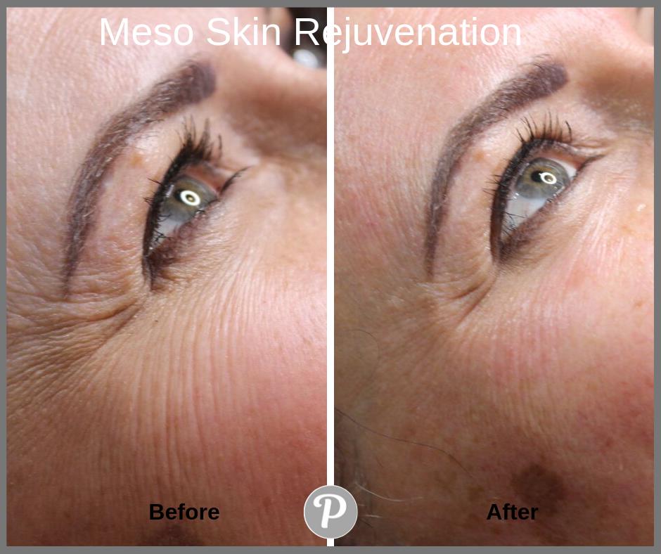 Meso Skin Rejuvenation.png