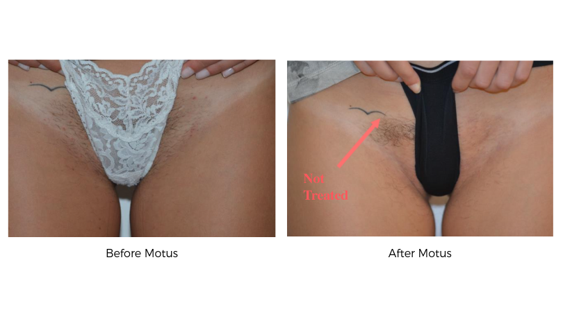 Pain Free Laser Hair Removal In Fulton Md Pura Vida Medspa