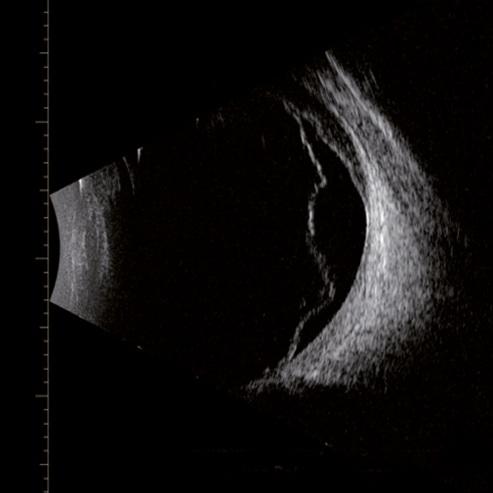 scan_image_Retinal--Choroidal-detachment.jpg