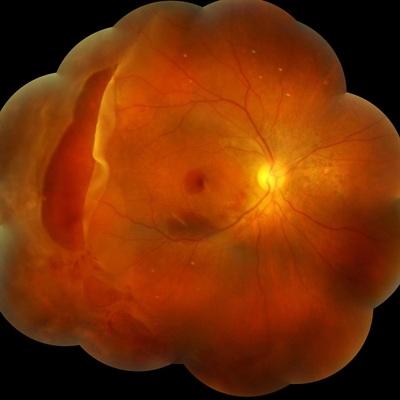 giant+retinal+tear.jpg