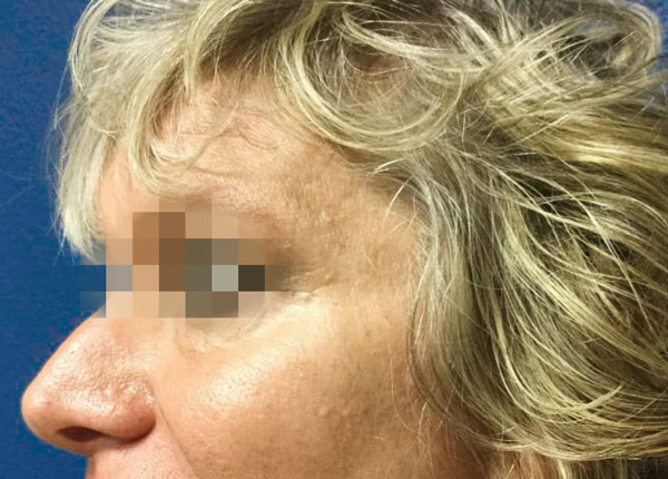 After Botox and Volbella By   Michelle Brown