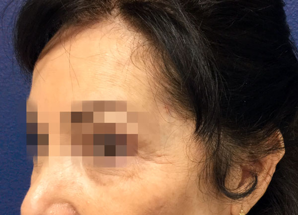 After NuDerm and Botox By   Michelle Brown