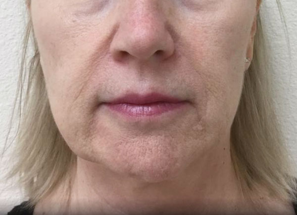 After Juvederm Ultra Plus By   Michelle Brown