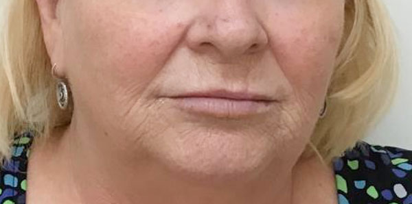 After Volbella (Perioral) and Juvederm (Lips) By   Maria Mosos