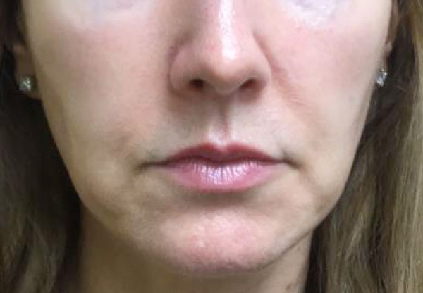 After Kybella (Jowls) By   Michelle Brown