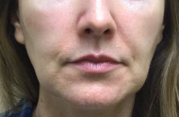 Before Kybella (Jowls) By   Michelle Brown