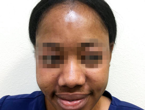 After Jessner Peel + Melasma Cream By   Michelle Brown