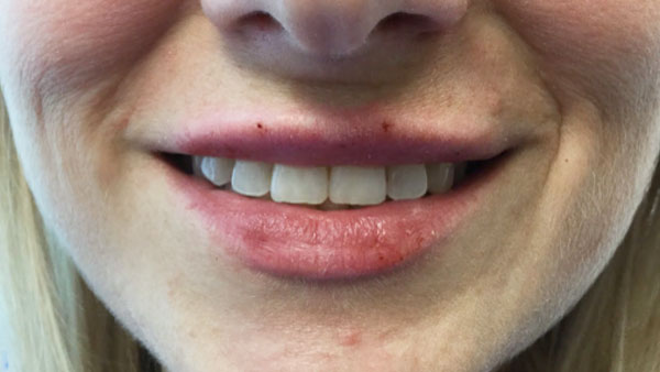 After Restylane Silk (Lips)