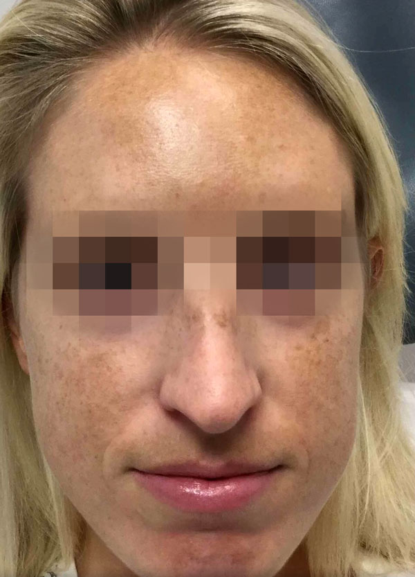 Before 1 IPL Photofacial Treatment By   Ann Tran
