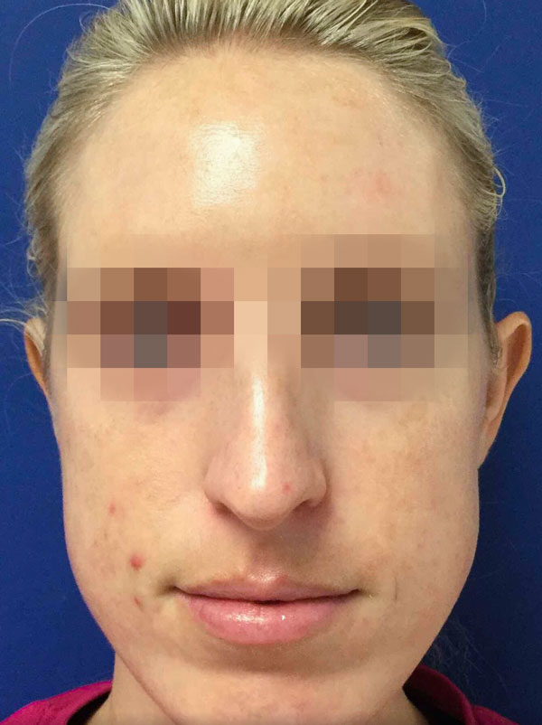 After 1 IPL Photofacial Treatment By   Ann Tran