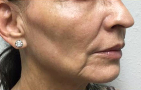 Before PDO Threads, Juvederm Ultra (Lips), Voluma (Cheeks) By   Heather Scull